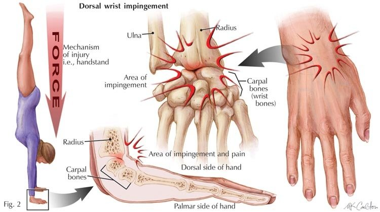 Picture of a wrist injury common in calisthenics athletes and handbalancers