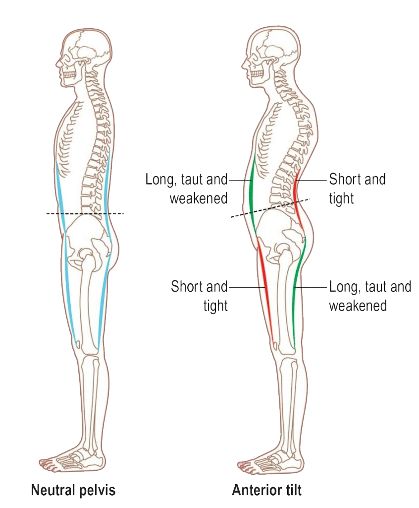 Picture showing the anterior pelvic tilt along with the tight and weakened muscles respectively
