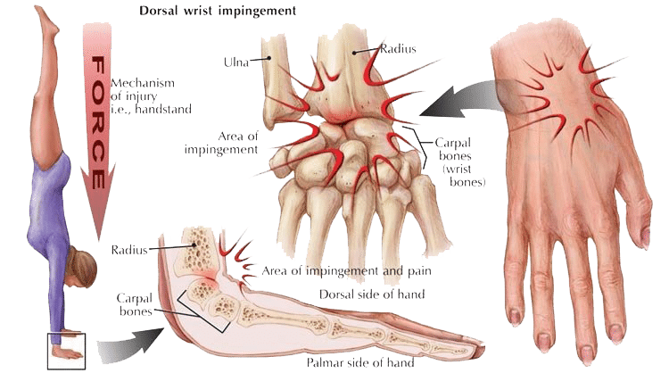 Diagram showing dorsal wrist impingement due to handstand training